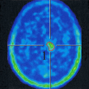My brain, according to the PET scan